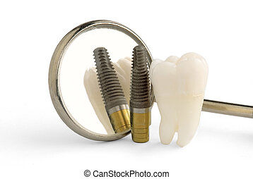 dental implant - Human tooth, titanium implant and dental...