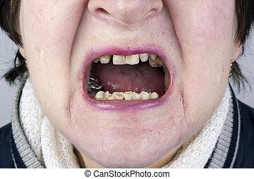 破坏, 婦女, 牙齒