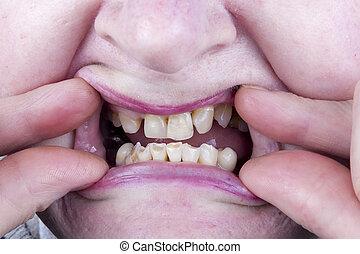 坏, 不完全變化動詞, 牙齒