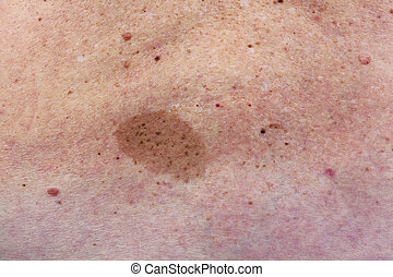Big birthmark on woman back - Big skine birthmark on lumbar...