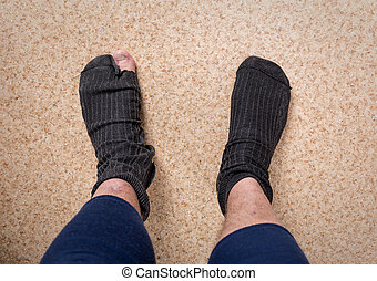 Male feet with sock in hole