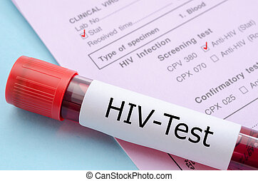 Sample blood collection tube with HIV test. - Sample blood...