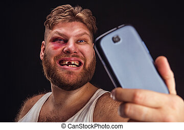 Man with bruise takes selfie - Man with bruise and without...