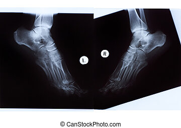 X-ray of Mature Woman Feet