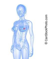 breast cancer - 3d rendered illustration of a transparent...