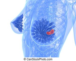 breast cancer - 3d rendered illustration of a transparent...