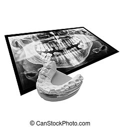 Black and white Xray of teeth with positive teeth cast -...