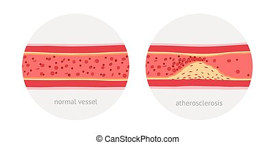 Atherosclerosis in vessels - Healthy and atherosclerosis...