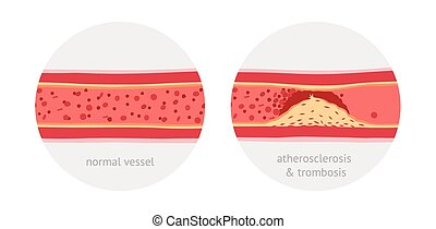 Atherosclerosis in vessels - Healthy and atherosclerosis and...