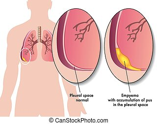 Pleural empyema - medical illustration of the effects of the...