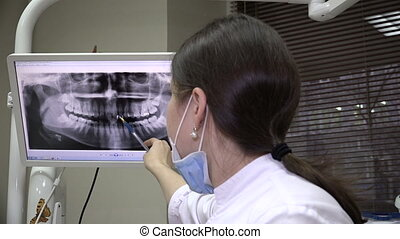 Dentist Shows X-ray image on the screen - Dentist Shows At...