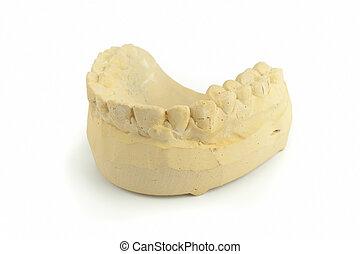 Teeth gypsum model