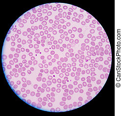 Plaqueta, thrombocyte, sangre, cell.,