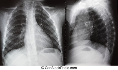 Lung radiation chest Xray - Face and lateral projection of...