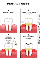 Dental caries formation, dental plaque, loss of calcium,...