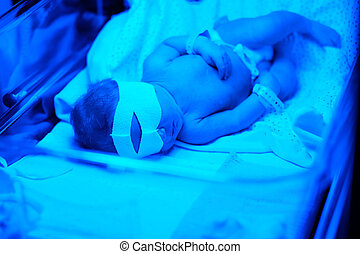 Newborn baby having photo theraphy - Two days old newborn...
