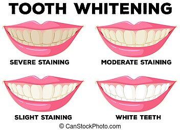 Process of tooth whitening illustration