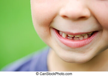 Close up of 6 year old smiling mouth
