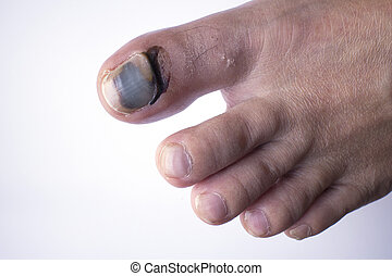 Toe injury - Phalanx fracture and bleeding under skin and...
