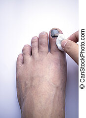 Toe injury cleaning - Toe injury cleaned with alcohol