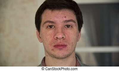 Man with Acne - depressed man with a problem skin