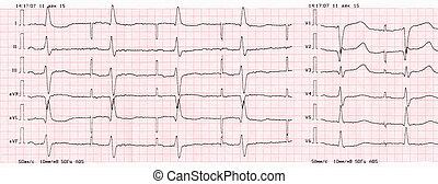 Tape ECG with pacemaker rhythm atrial pacing - Tape ECG with...