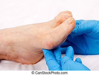 Feet care - Doctor hand examining an elderly patient's foot