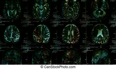 Closeup of a CT scan