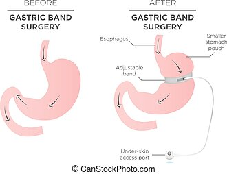 Gastric Band for Weight Loss. If you Tighten or Loosen it,...