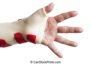 Hand with wrist and thumb splint
