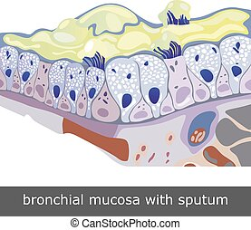 Bronchial Mucosa with Sputum - Structure of damaged...