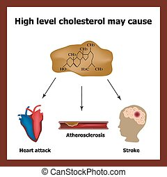 High cholesterol causes - heart attack, stroke,...