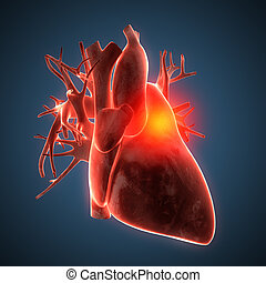 heart human disease illustration - See other illustrations...