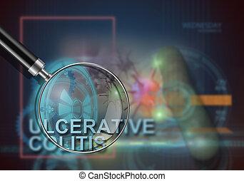 ulcerative, colitis,