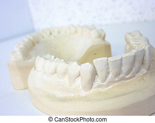 Plaster teeth - White plaster teeth of upper and lower jaws