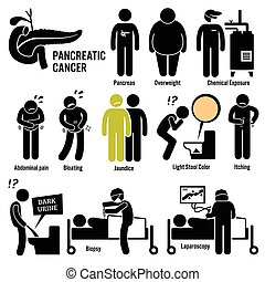 Pancreatic Pancreas Cancer - Set of illustrations for...