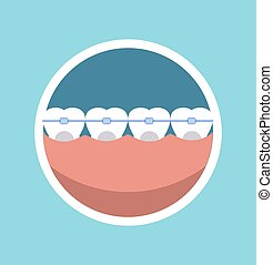 Tooth braces vector illustration Dentist braces tooth care...