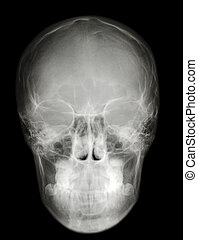 x-ray scull front profile - a roentgenogram x-ray...