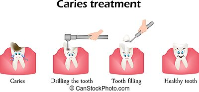 Treatment of caries. Drilling a tooth. Sealing of the tooth. Infographics. Vector illustration in cartoon style on isolated background