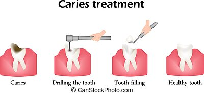 Treatment of caries. Drilling a tooth. Sealing of the tooth. Infographics. Vector illustration on isolated background