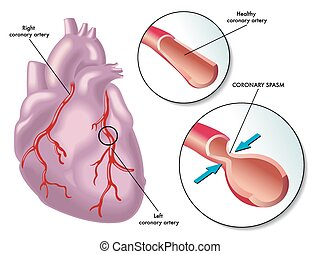coronary artery spasm - medical illustration of the...