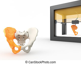 3d printed hip bone - 3d printing human body. 3d printed...