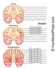 epilepsy - medical illustration of the various symptoms of...