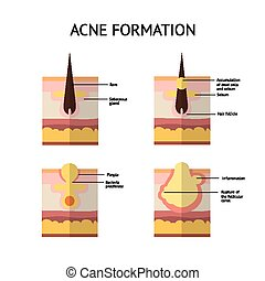 Formation of skin acne or pimple. The sebum in the clogged...
