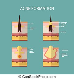 Formation of skin acne or pimple The sebum in the clogged...
