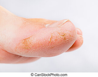 Dry skin on big toe - Close up photo of a person with dry...