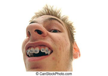 Showing off braces - Some weirdo showing off his new braces....