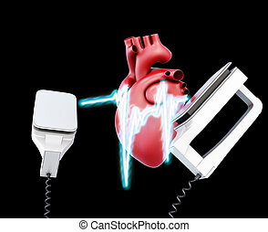 Defibrillator and heart on a black background 3d...