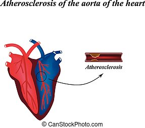 Atherosclerosis of the arteries of the heart Infographics...