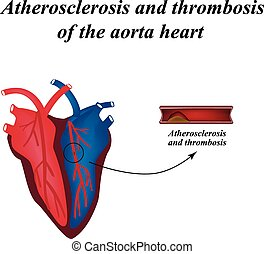 Atherosclerosis and thrombosis of arteries of the heart...